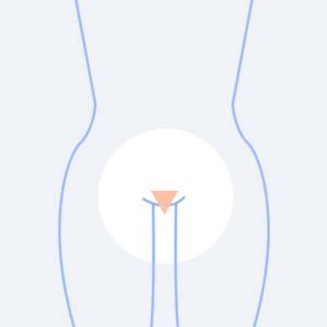 陰毛の形、極小三角形