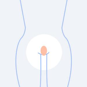 陰毛の形、たまご型