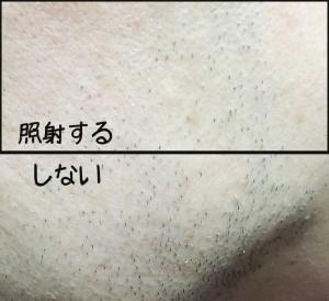 家庭用レーザー脱毛ヒゲの効果