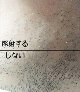 トリアでひげ脱毛の効果が分からない