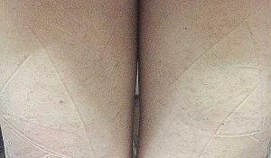 トリア5回目脱毛の効果写真